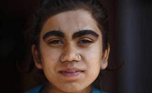 """La """"sindrome del lupo mannaro"""": il caso di una famiglia nepalese colpita da ipertricosi"""
