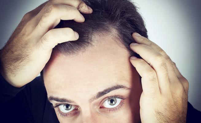 Alopecia: come combatterla?