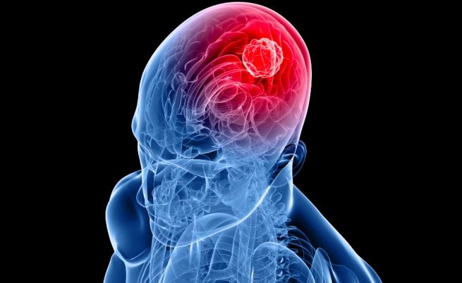 Grandi passi avanti nella lotta contro il tumore al cervello: un vaccino potrebbe permettere la guarigione