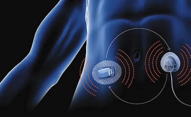 Pancreas bionico: ecco la nuova arma contro il diabete