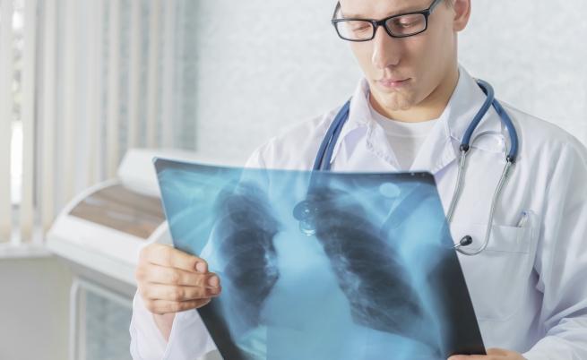 L'Organizzazione Mondiale della Sanità stabilisce il piano per debellare definitivamente la tubercolosi