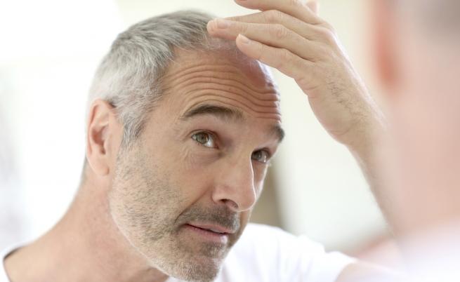 Scoperta la cura contro la calvizie: si potranno far ricrescere i capelli