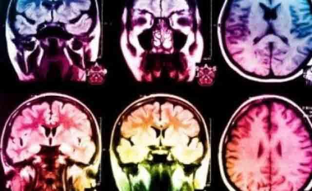 Ictus, il cervello ripara se stesso