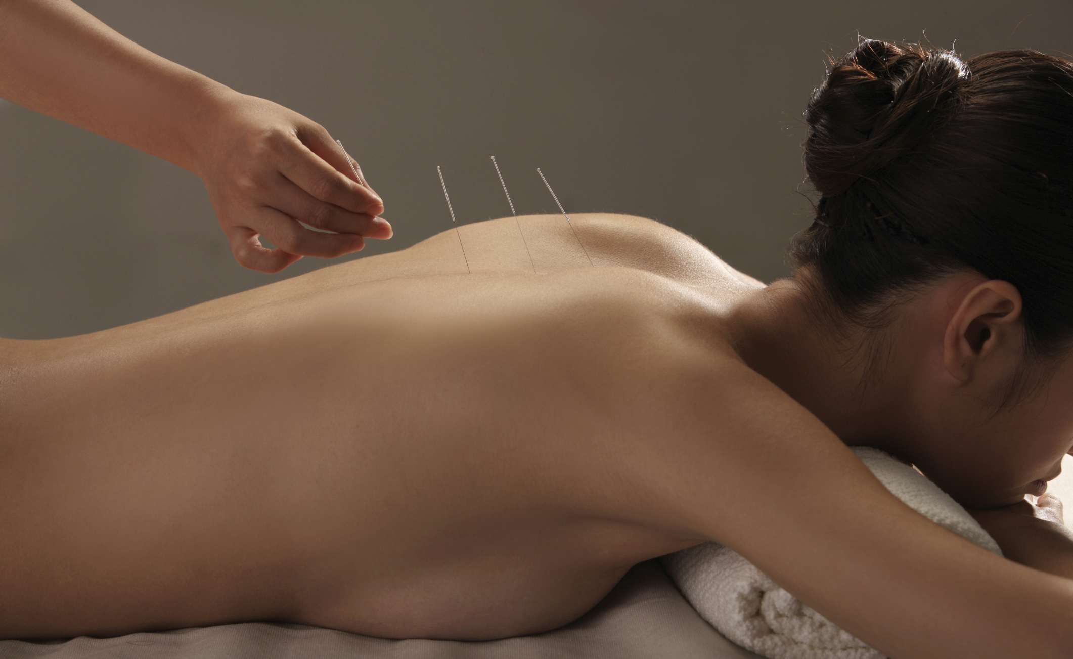 Agopuntura: quando il segreto del successo è credere nella terapia