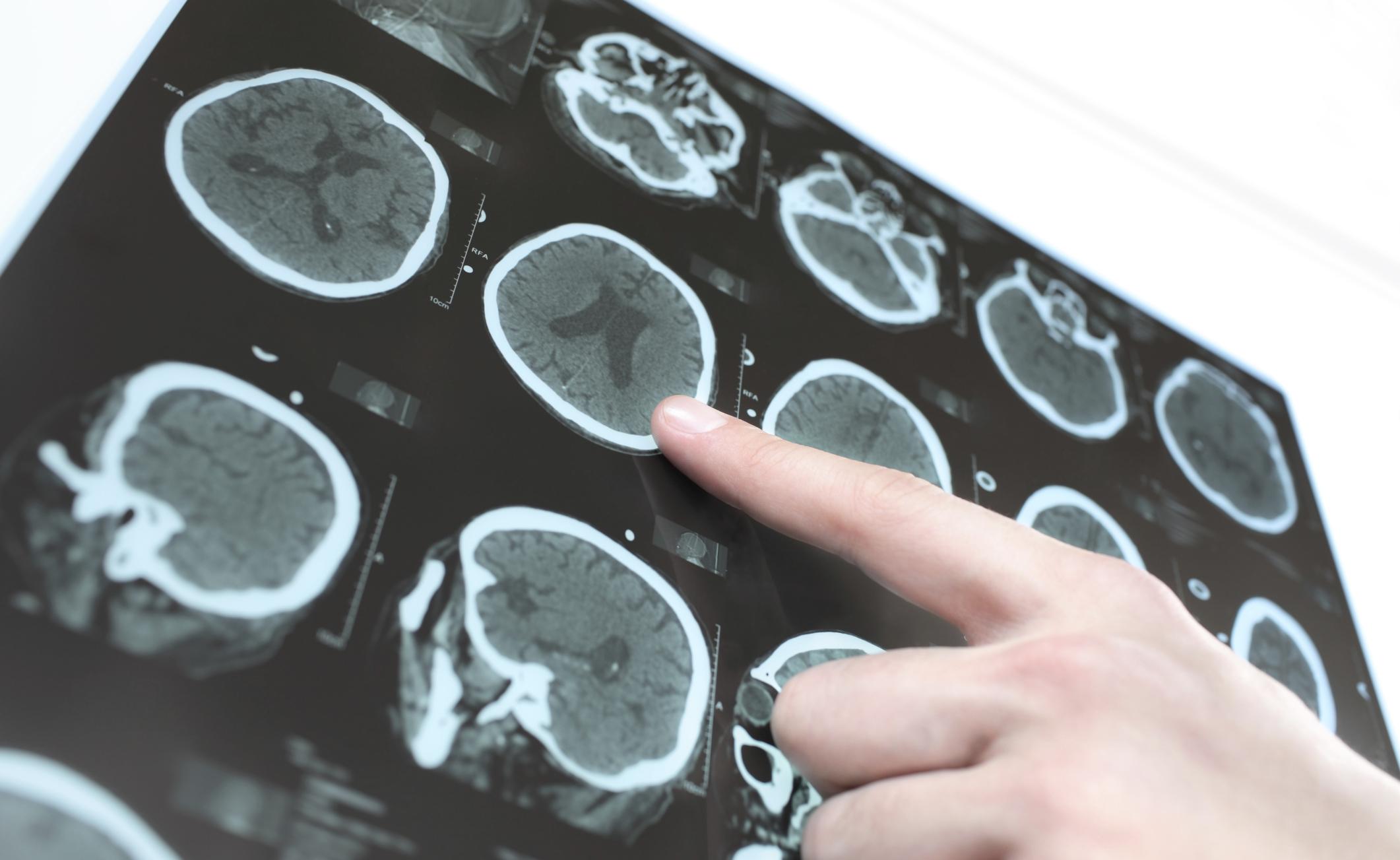 La depressione aumenterebbe il rischio di Parkinson