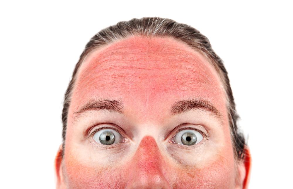 Eritema solare? Ecco cosa fare
