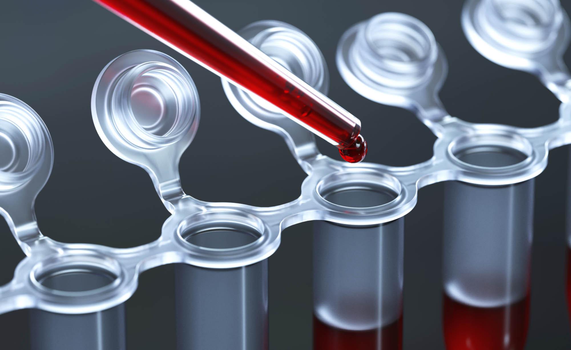 VirScan: il nuovo test che svela quali malattie virali abbiamo avuto