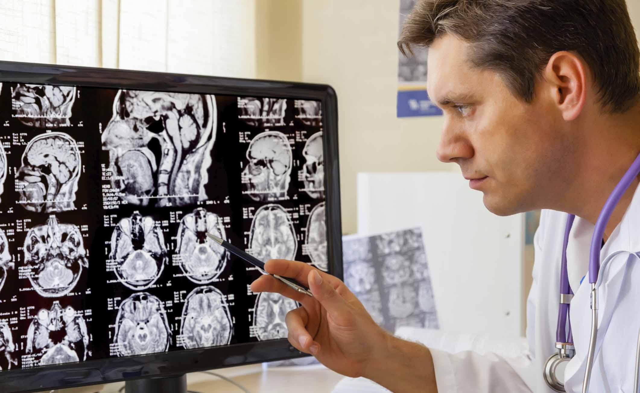 I rischi dell'anestesia per il cervello