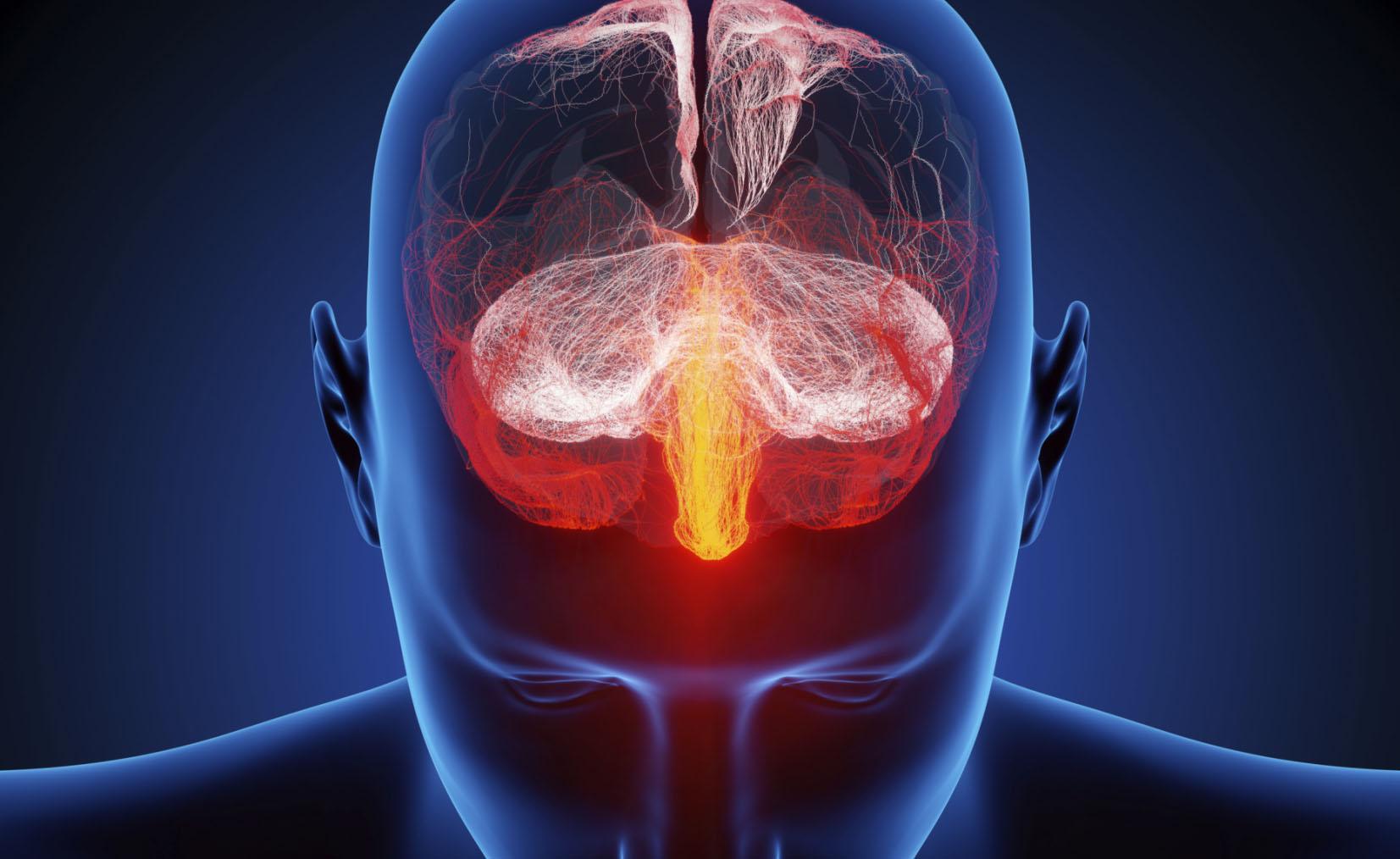 Mal di testa: conoscere le cause per sconfiggerlo