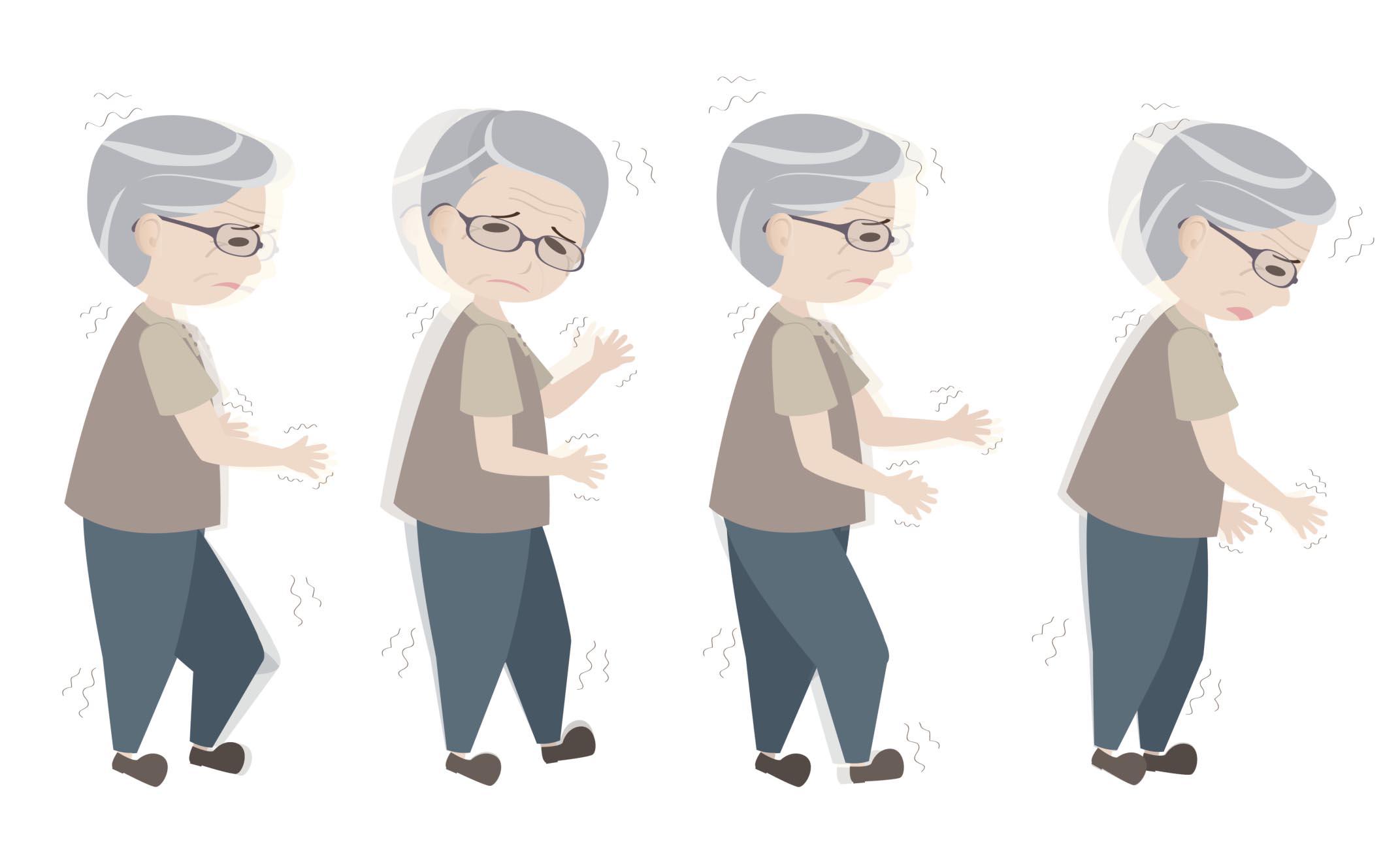 Morbo di Parkinson: tutto quello che c'è da sapere