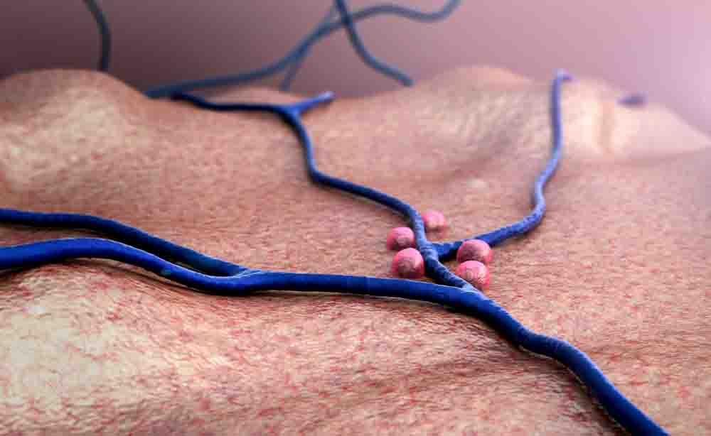 Stop al diabete di tipo 1: potrebbe essere bloccato grazie alle cellule staminali