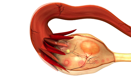 Aspirina: riduce il rischio di tumore all'ovaio del 10%, secondo nuovi studi
