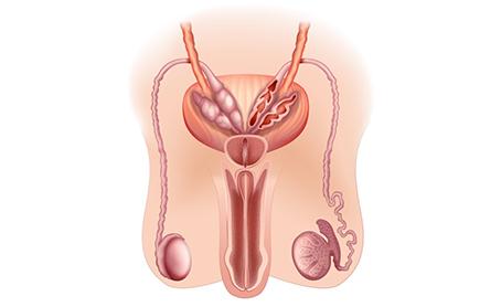 Ipogonadismo maschile: cause, sintomi e trattamento