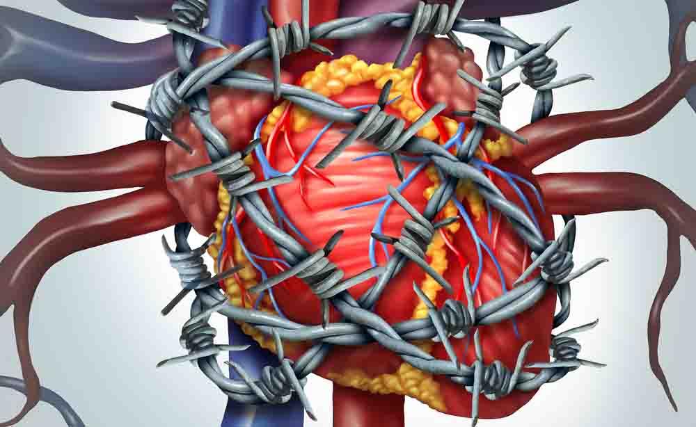 Lutto o separazioni: due minacce per la salute del cuore