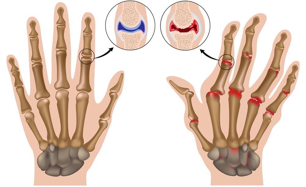 Artrite reumatoide: i cibi da evitare
