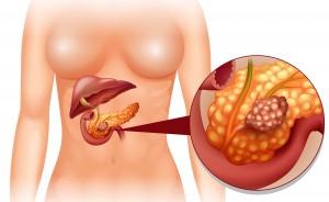 Cancro al pancreas: i sintomi
