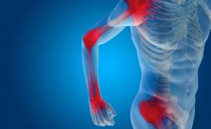 Artrite reumatoide: cause e sintomi