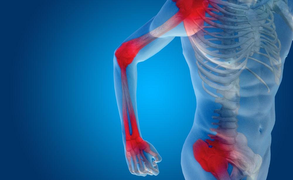 Quello che non sai sull'artrite reumatoide