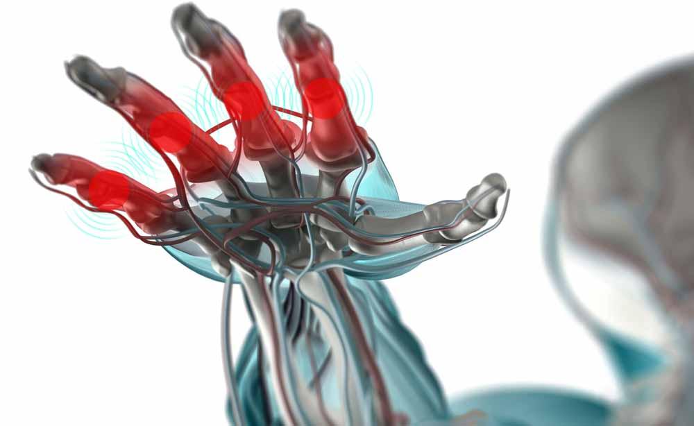 Artrite idiopatica giovanile: conoscere il dolore sin da piccoli