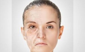 Invecchiamento: cause
