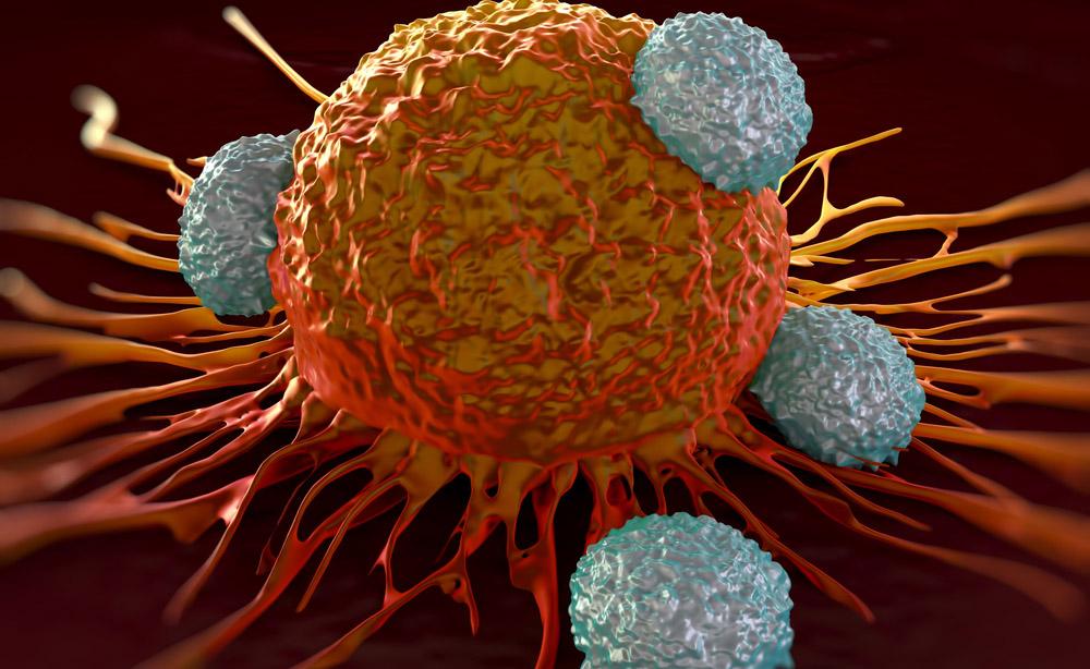 Perder peso per limitare i rischi di sviluppare un tumore