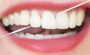 Filo interdentale: igiene orale