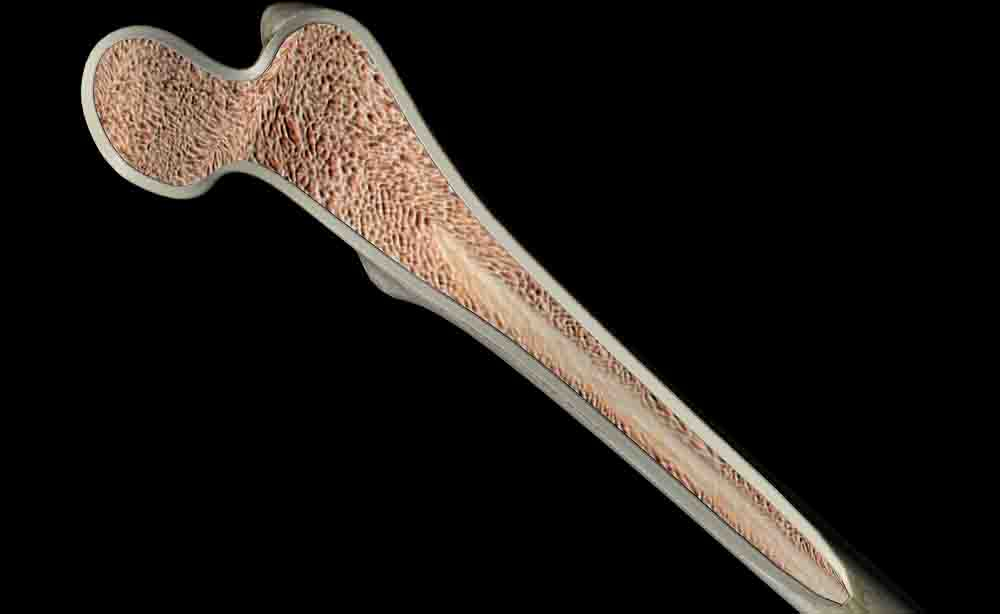 Impianti sintetici che aiutano le ossa ferite a riformarsi: un giorno potrebbe essere realtà
