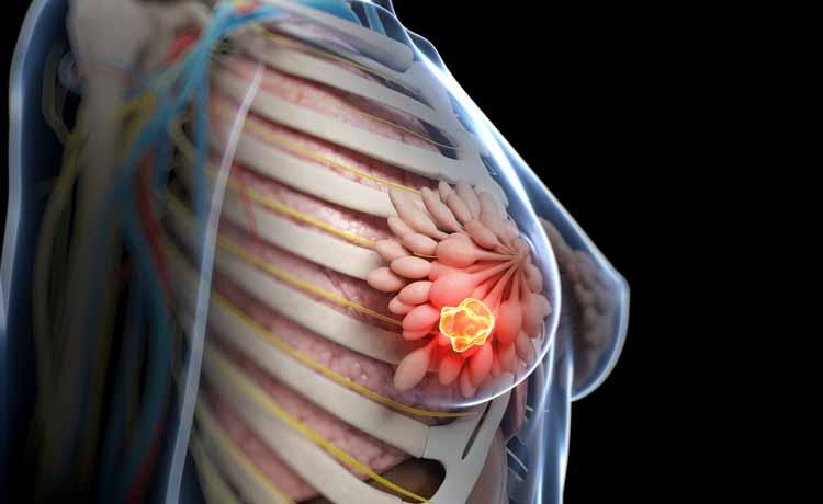tumore sl seno