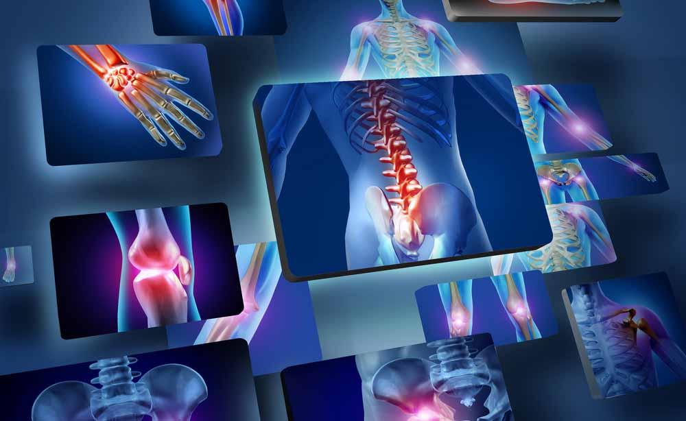Malattie articolari e crioterapia