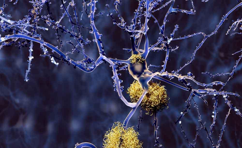 L'anestesia aumenta il rischio di Alzheimer?