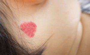 angioma rubino: cosa è e come si cura