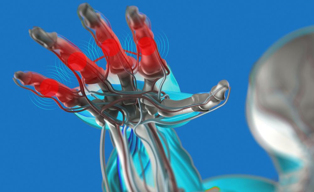 Artrite: un aiuto dalla crioterapia