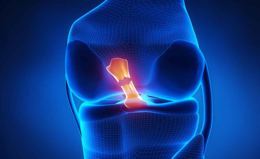 Meniscectomia: guarire le lesioni al menisco con la fisioterapia