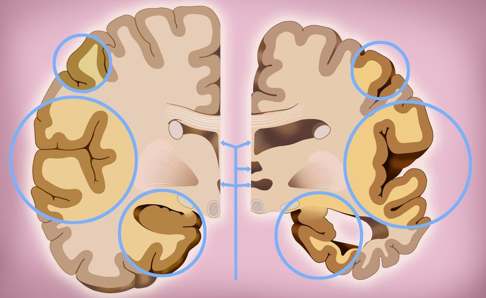 Morbo di Alzheimer: più vicini alla cura