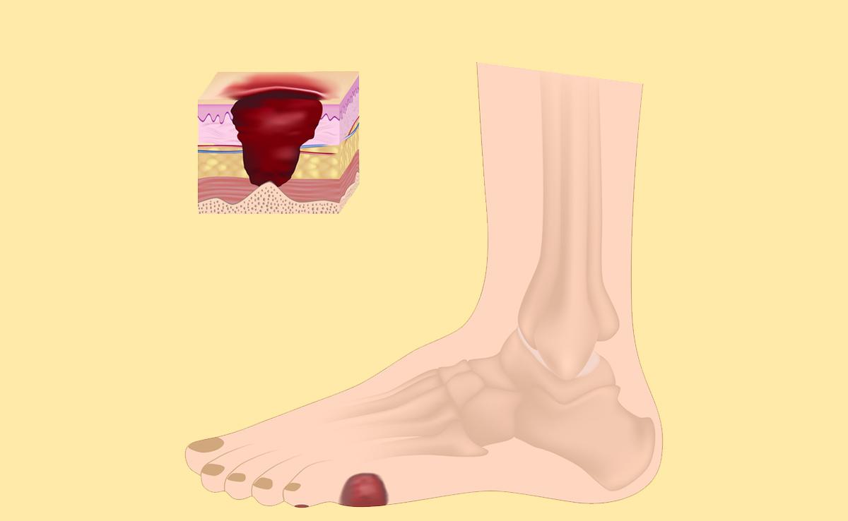 Come curare il piede diabetico