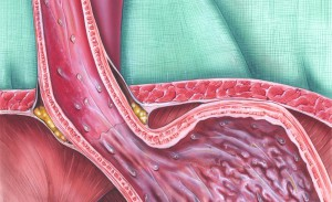 reflusso gastroesofageo: i sintomi