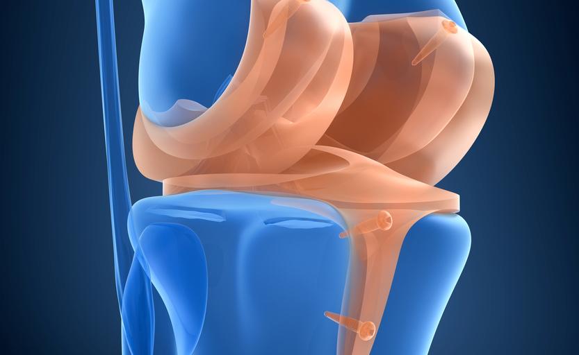 I sintomi di una lesione al menisco