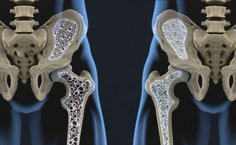 Osteoporosi: curarla con la vertebroplastica