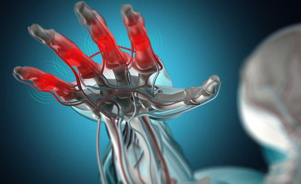 5 consigli alimentari per combattere l'artrite