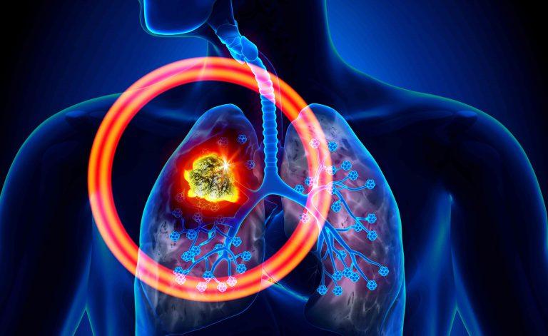 tumore ai polmoni senza tosse