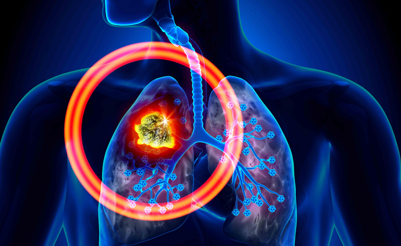Tumore ai polmoni: il mal di schiena può essere un campanello d'allarme