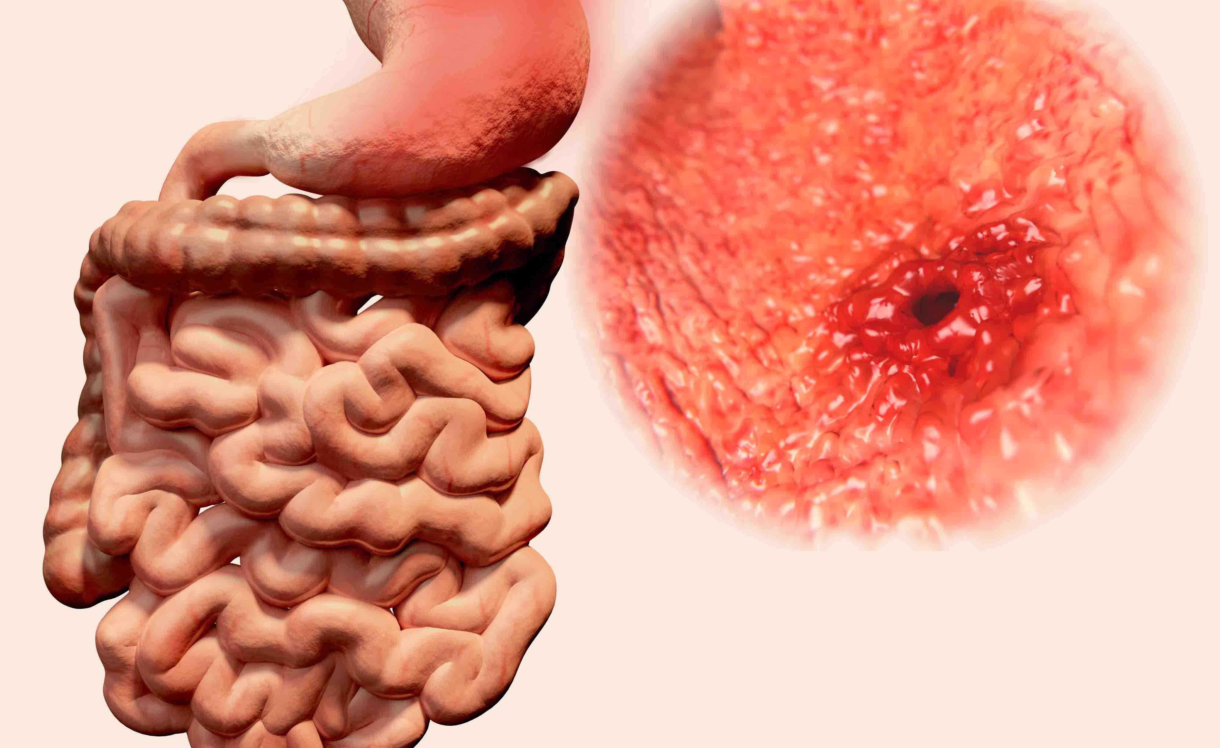 ulcera duodenale e perdita di peso