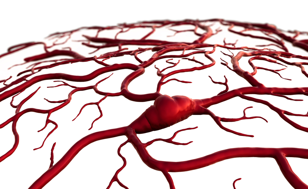 Malattie gengivali e ictus cerebrale: qual è il legame?