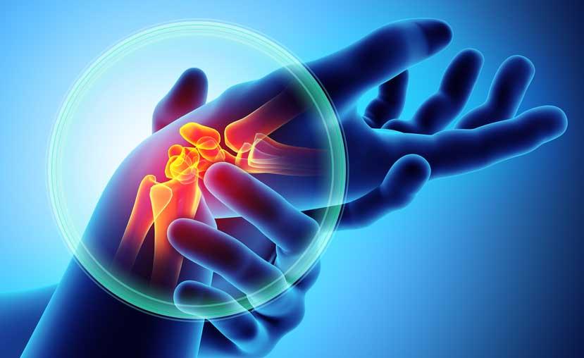 Artrite o artrosi: qual è la differenza?