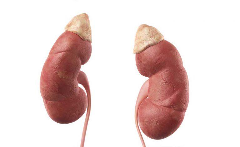 Nefropatia diabetica: di cosa si tratta e cosa comporta