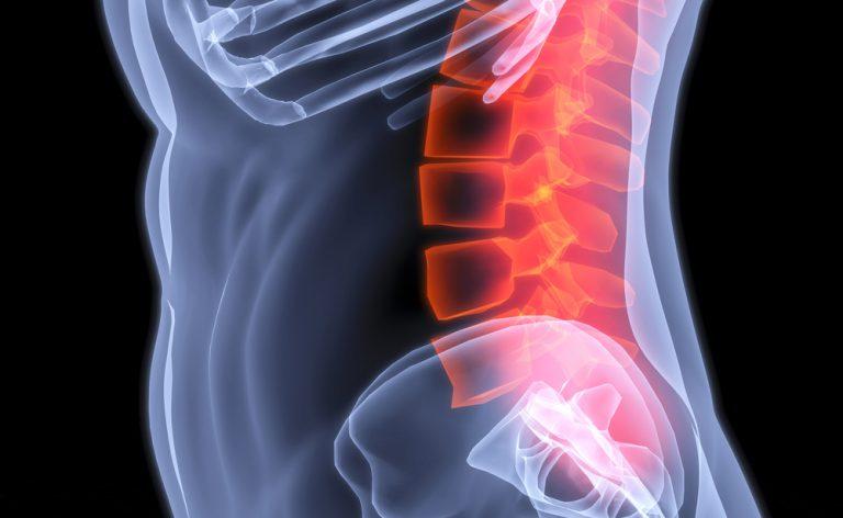 Stenosi vertebrale: curarla senza bisturi