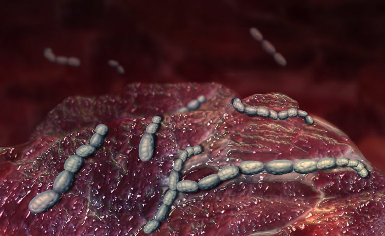dolore allinguine femminile quando starnutisce e tossisce