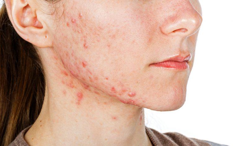 Rimedi per l'acne: i consigli del dermatologo
