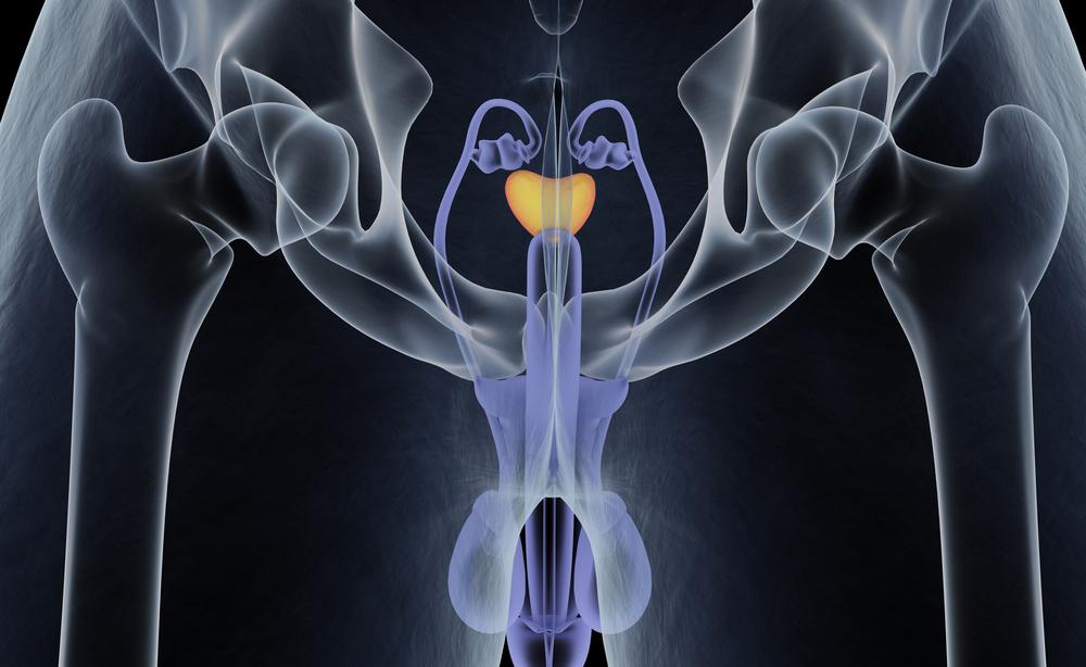 Prostatite: i sintomi dell'infiammazione