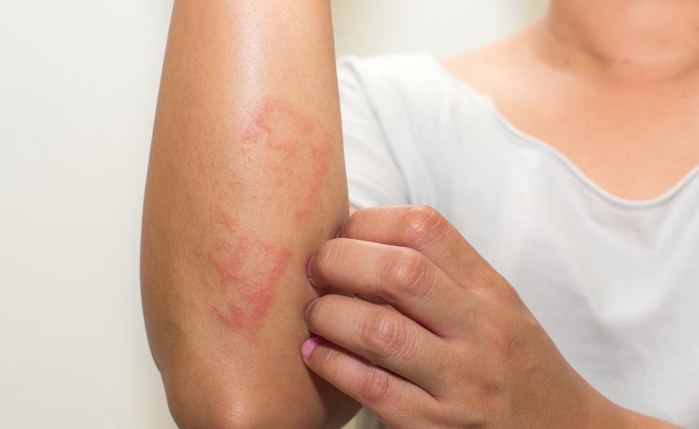 Psoriasi e dermatite seborroica: quali sono le differenze?